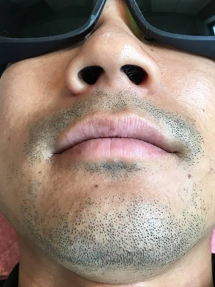 完全個室のリラクゼーション ライラックローズ掛川店 メンズ脱毛 ヒゲ脱毛前の写真11