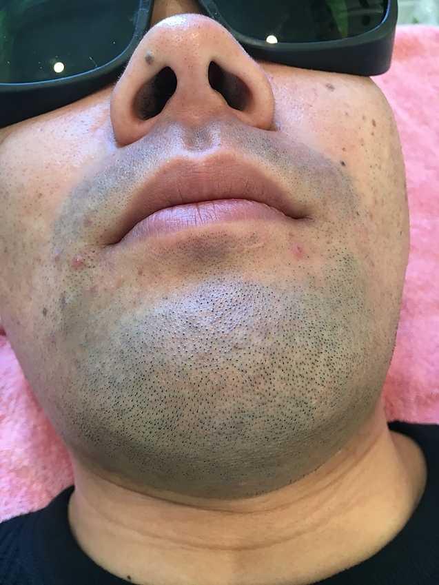 ライラックローズ メンズひげ脱毛のイメージ画像A.Y1 ヒゲ脱毛施術前