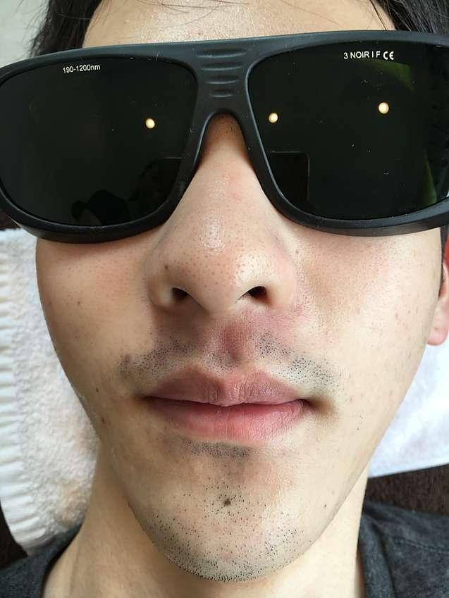 ライラックローズ メンズ脱毛 ヒゲ脱毛6回目施術画像 痛くなくて安いので大好評 全身脱毛にも対応 鼻下だけなら1回2000円
