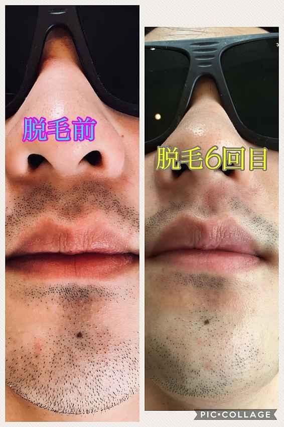 ライラックローズ メンズ脱毛 ヒゲ脱毛6回目施術画像 プロのエステティシャンが施術するので安全安心で痛くない。おまけにかなり安いと大好評 鼻下だけなら1回2000円
